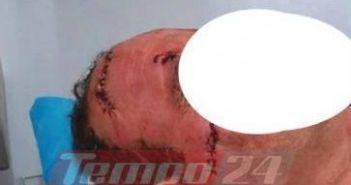 Δυτική Ελλάδα: Ασθενής ζήτησε το λόγο από γιατρό και εκείνος τον χαράκωσε στο πρόσωπο! (ΔΕΙΤΕ ΒΙΝΤΕΟ-ΦΩΤΟ)