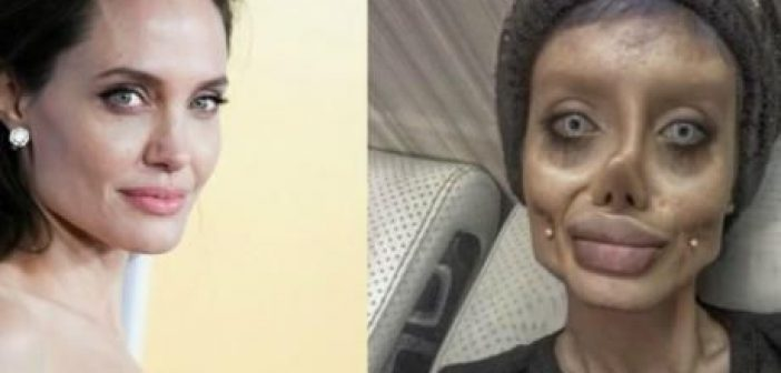 H Ιρανή που έκανε 50 πλαστικές επεμβάσεις για να μοιάσει στην Αντζελίνα Τζολί (ΣΟΚΑΡΙΣΤΙΚΕΣ ΦΩΤΟ)