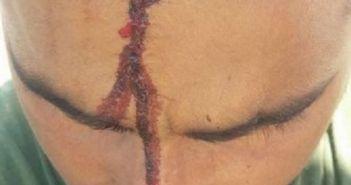 Δυτική Ελλάδα: Χτύπησε με αξίνα στο κεφάλι Πακιστανό εργάτη γιατί ζήτησε τα δεδουλευμένα του (ΔΕΙΤΕ ΦΩΤΟ)
