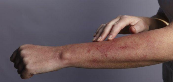 Παγκόσμια Ημέρα Λύκου: Τι είναι η δυνητικά θανατηφόρα ασθένεια – Όλα τα συμπτώματα