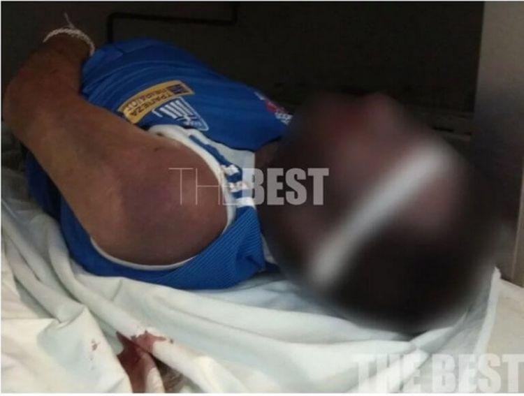 Πάτρα: Ξυλοκόπησαν κρατούμενο μέχρι θανάτου – Σοκαριστικές εικόνες!