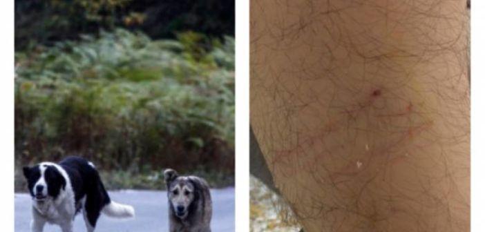 Δυτική Ελλάδα: Αδέσποτος σκύλος δάγκωσε στο πόδι φοιτητή του Πανεπιστημίου Πατρών (ΦΩΤΟ)