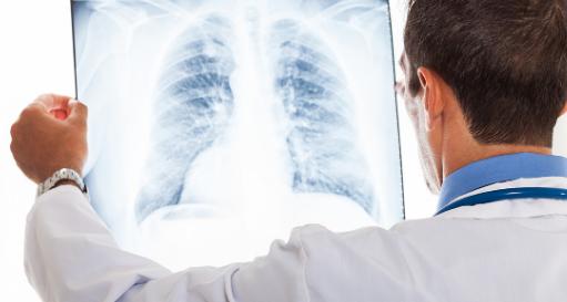 Καρκίνος του πνεύμονα: Πρώτη αιτία θανάτου στην Ελλάδα – Σωτήρια η πρώιμη διάγνωση