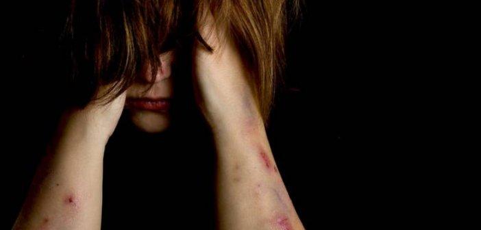 Δυτική Ελλάδα: Στο Καραμανδάνειο Νοσοκομείο Παίδων 14χρονη με τραύματα στο πρόσωπο – Τη χτύπησαν με σιδερολοστό – Δύο συλλήψεις τα ξημερώματα