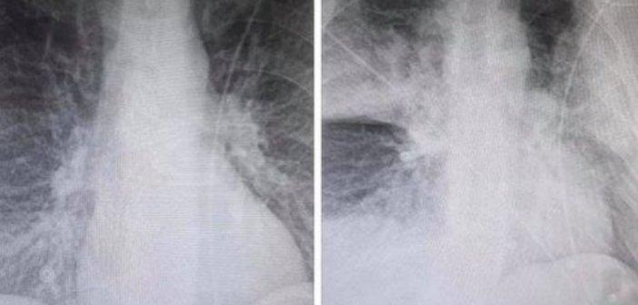Φωτογραφία-σοκ: Η αλλοίωση στους πνεύμονες 38χρονου ασθενούς με κορονοϊό μέσα σε λίγες ώρες