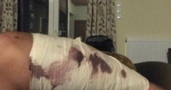 Τραυματισμός πολίτη από επίθεση σκύλου, στον Αγ. Γεώργιο Καλυβίων
