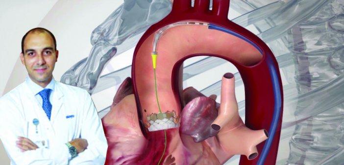 Ο Αραβαντινός Διονύσιος, Καρδιολόγος, Διδάκτωρ Ιατρικής Σχολής Πανεπιστημίου Αθηνών για την Αντικατάσταση Αορτικής Βαλβίδας χωρίς ανοιχτό χειρουργείο