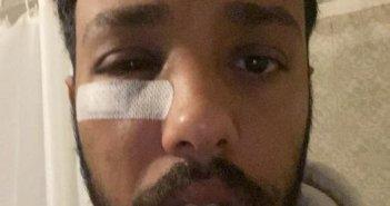 Πρόσφυγας καταγγέλλει ρατσιστική επίθεση στην πλατεία Αγ. Γεωργίου με αφορμή μια… μπίρα