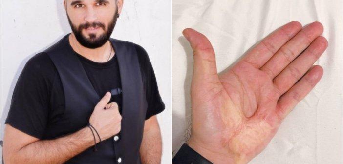 Χρήστος Χρυσάφης: Ο τραγουδιστής με τα σημάδια στις παλάμες που θυμίζουν τις πληγές του Εσταυρωμένου