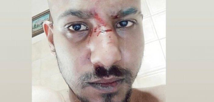Ναύπακτος: Καταγγέλλει ότι ξυλοκοπήθηκε για τη διαφορετικότητά του (εικόνα – video)