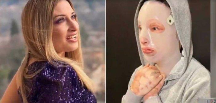 Επίθεση με βιτριόλι: Τα δώρα που συγκίνησαν την Ιωάννα στο Instagram