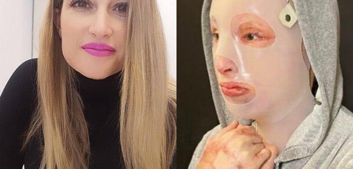 Επίθεση με βιτριόλι: Υποβλήθηκε στο 8ο χειρουργείο η Ιωάννα