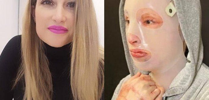 """Ιωάννα Παλιοσπύρου – Επίθεση με βιτριόλι: """"Υπάρχει συνεργός που κυκλοφορεί ελεύθερος"""" (VIDEO)"""